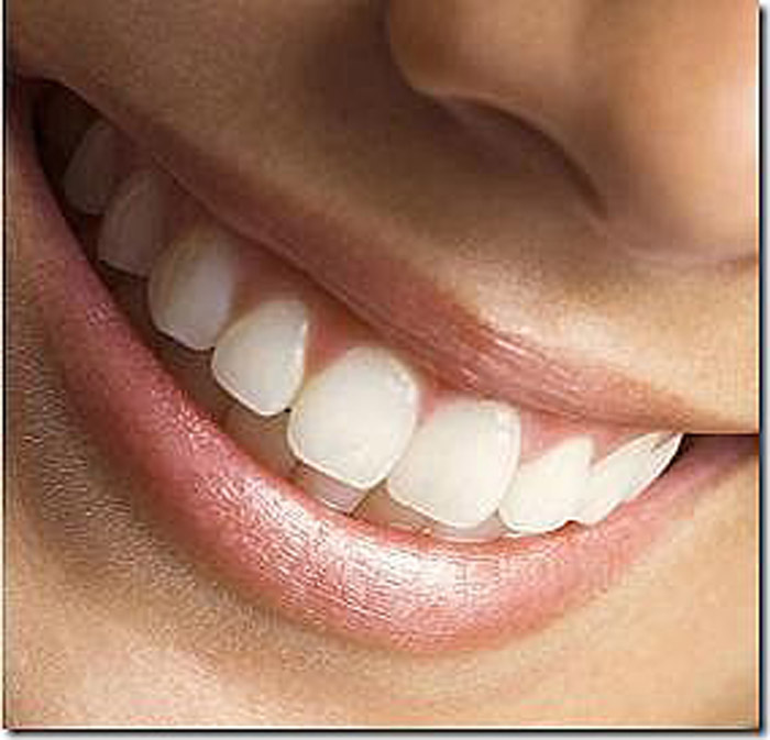 Fast and Easy Teeth Whitening with Snap on Teeth